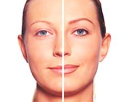 Correcciones y trucos de micropigmentación