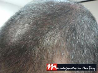 Relleno superior 2b_marca con tricopigmentación