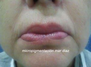 Antes del perfilado de labios