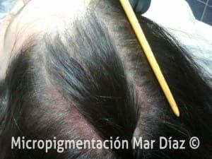 Antes del inicio del tratamiento de pigmentación capilar