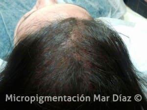 Después de la pigmentación Capilar
