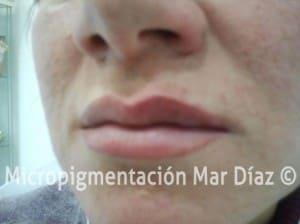 Pigmentación labios
