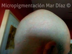 Cicatriz cubierta con tricopigmentación
