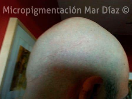 MarcaFoto-cicatrizblog