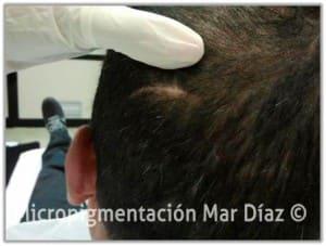 Cicatriz en la nuca antes de la micropigmentación