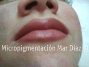 Labio con relleno mucosa - Perfilado de labios naturales