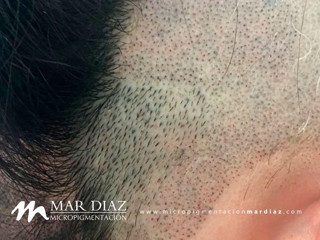 Efecto rapado en alopecia areata tratara con tricopigmentación capilar con Mar Díaz