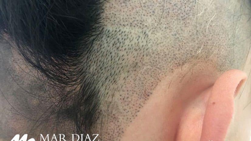 Mar Diaz - Efecto pelo rapado en un paciente con alopecia areata