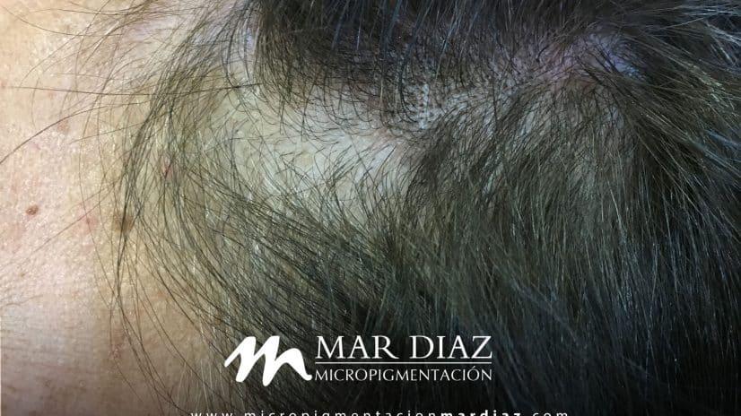 micropigmentacion-mar-diaz-blog-tricopigmentacion6