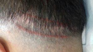 Trabajo Tricopigmentación por Mar Diaz - Pérdida de pelo